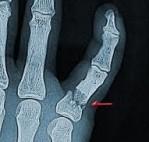 Parmak kırıklarına genellikle bir travma neden olur